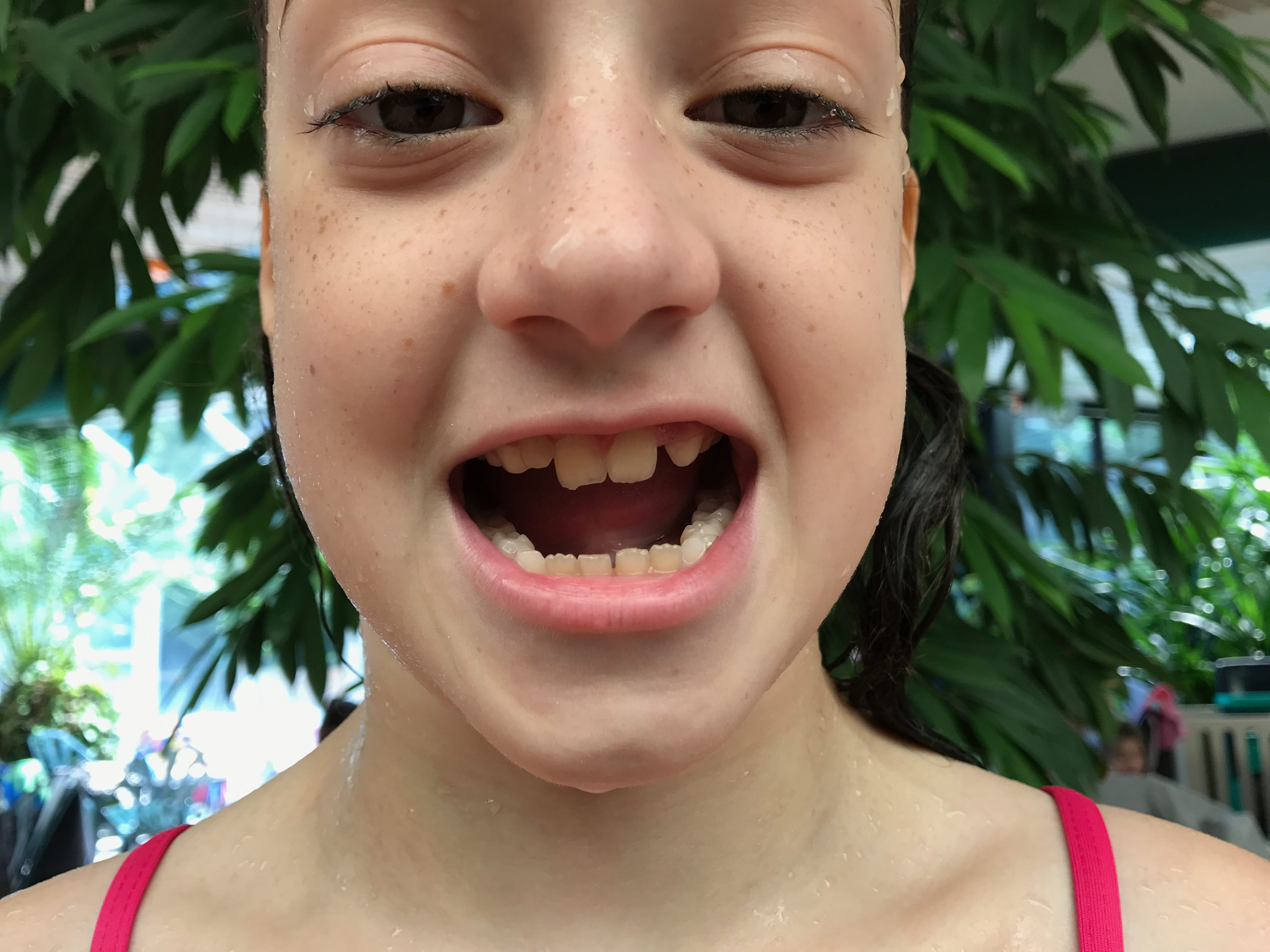 Isabella chipped her tooth
